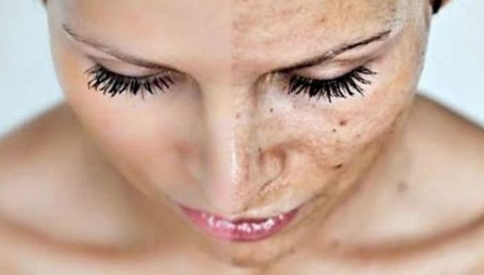 Sol + calor = manchas na pele. Saiba como evitar e tratar!